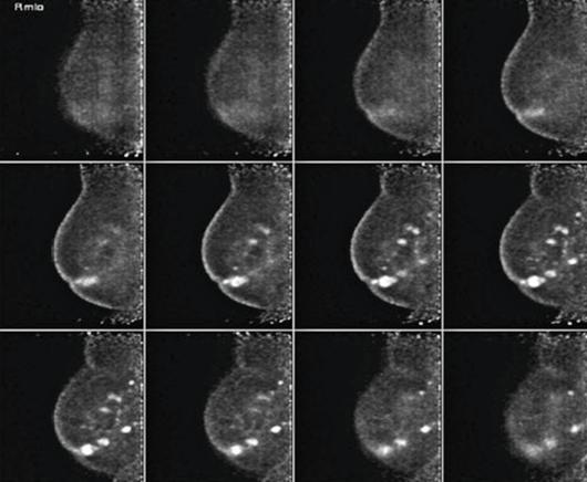 radiografiamamapalmeida_web